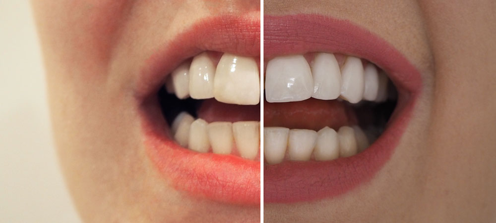 smile-brilliant-before-after